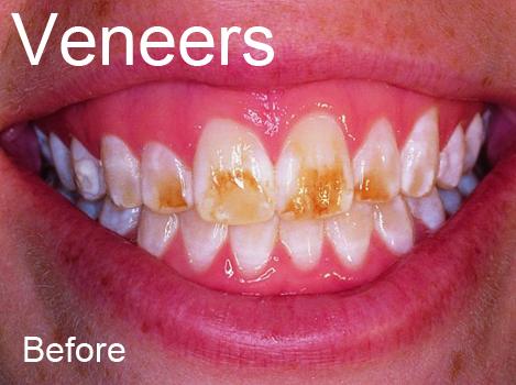 Veneer Before Family Dental Care
